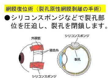 網膜復位術