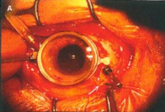 ハイブリッド硝子体手術の様子01