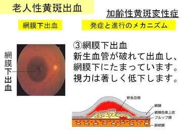 老人性黄斑出血01