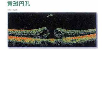 黄斑円孔01
