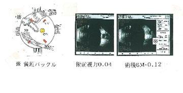 黄斑円孔03