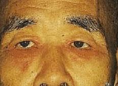 眼瞼結膜炎