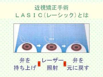 レーシックとはのイラスト1 近視矯正手術