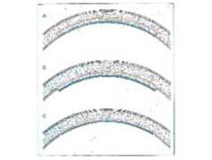 内皮疾患への選択的層状角膜移植