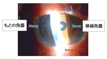 角膜皮内移植手術を施工した症例02