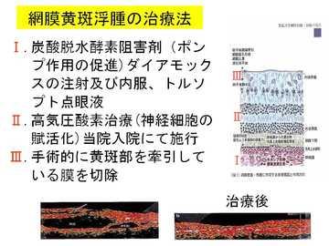 網膜黄斑浮腫の治療法