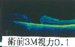 術前3M視力0.1
