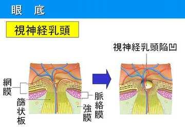 正常眼圧緑内障