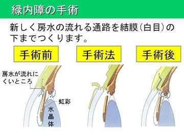 緑内障の手術